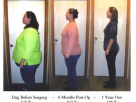 Surgery For Weight Loss – Surgeries You May Never Even Consider